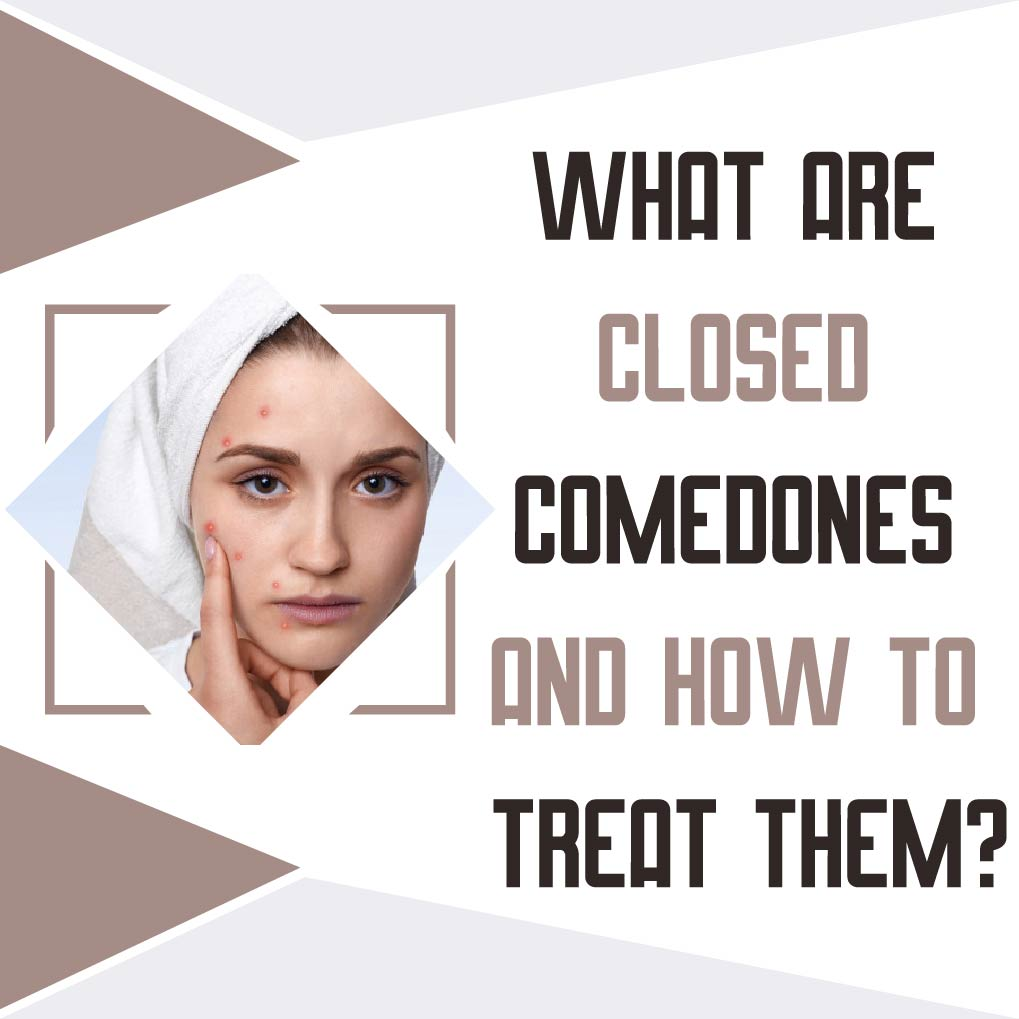 What are Closed Comedones and How to Treat Them?